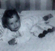 BabyCat@9months b4 Shriners for 3 years, then Mayo Clinic: Catherine L. Johnson;