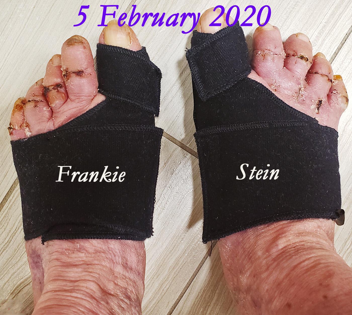FRANKIE_STEIN_5FEB2020_2